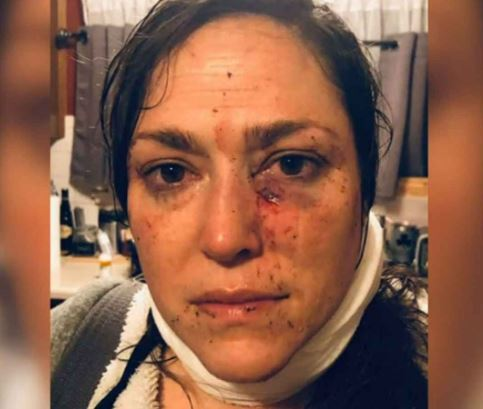 Alicia Clarke bashed by a Muslim in St Louis